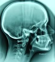 Télécrâne numérisé, radiologie crâne, radiologie numérisée