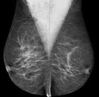 Mammographie numérisée, mammographie qualité, médecine 18e